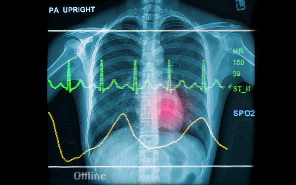 Academia Cardiovascular presenta el 2do Congreso Virtual de Medicina Cardiovascular